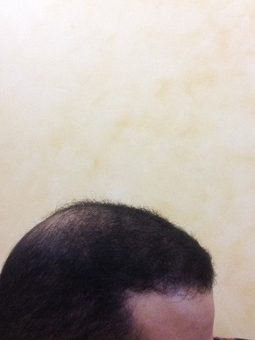 أقدم تجربـتي لزراعة الشعر مركـز 265867746.jpg