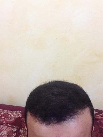 أقدم تجربـتي لزراعة الشعر مركـز 552579285.jpg