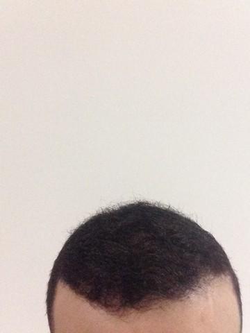 أقدم تجربـتي لزراعة الشعر مركـز 441229790.jpg