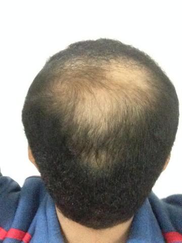 أقدم تجربـتي لزراعة الشعر مركـز 620730904.jpg