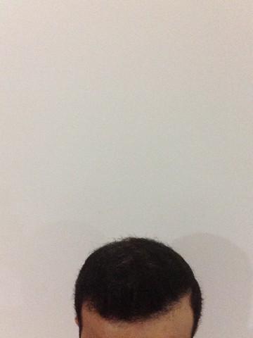 أقدم تجربـتي لزراعة الشعر مركـز 712007697.jpg
