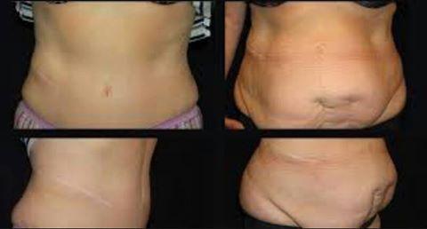 الدهون بالليزر التخلص مشكلة الكرش